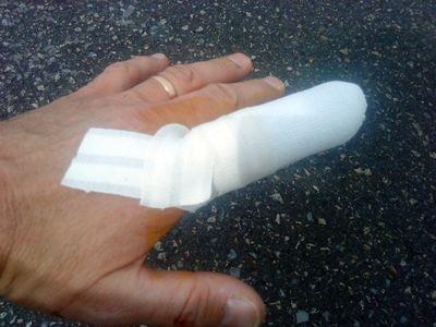 Yann's finger